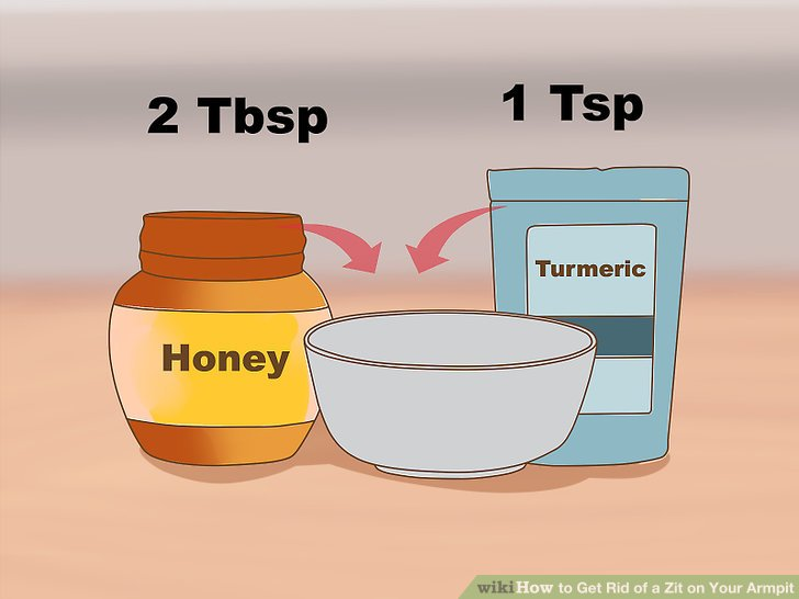Verwenden Sie Honig und Kurkuma, um Pickel unter den Armen zu behandeln.