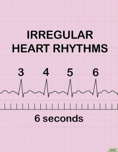 also how to measure and calculate heart rate from ecg expert reviewed rh wikihow