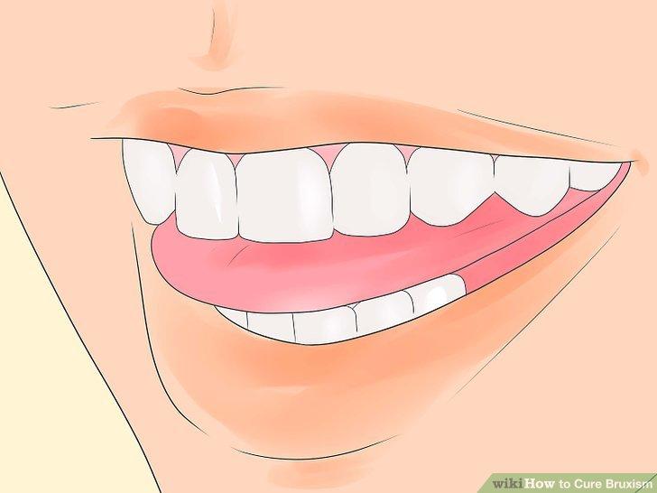Passen Sie Ihre Zunge an, um Ihren Kiefer zu entspannen.