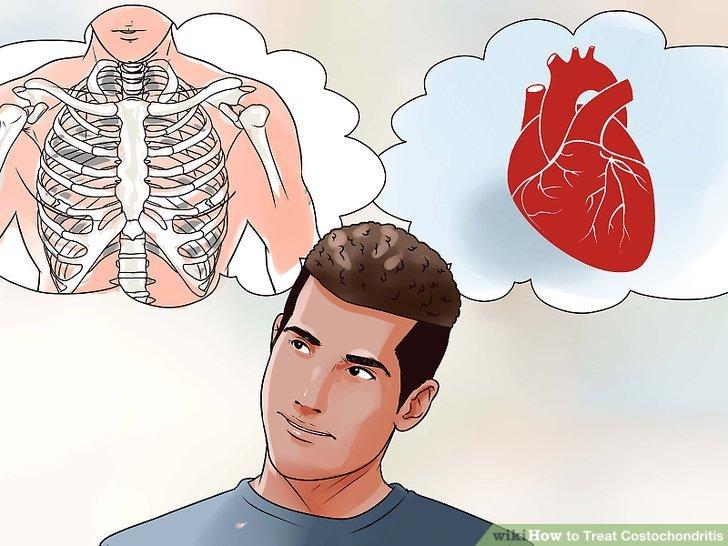 Seien Sie sich bewusst, dass das Hauptsymptom Brustschmerzen ist. Es kann daher schwierig sein, den Unterschied zwischen Costochondritis und dem Auftreten eines Herzinfarkts zu erkennen.
