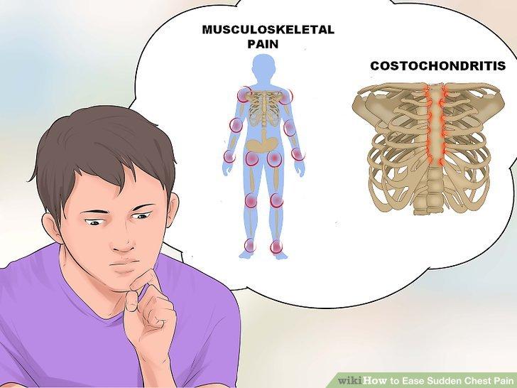 In der Lage sein, Costochondritis und muskuloskelettale Schmerzen zu unterscheiden.