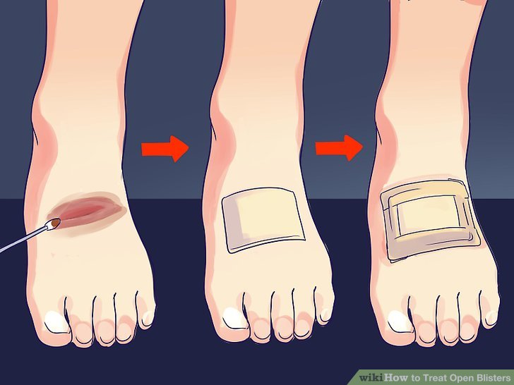 How to Treat Open Blisters - Practical Information