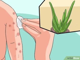 How to Treat Baby Heat Rash: 11 Steps (with Pictures) - wikiHow Mom