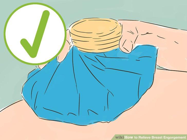 Verwenden Sie kalte Kompressen zwischen den Fütterungen oder dem Brustpumpen.
