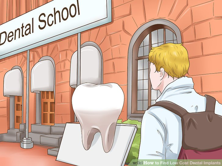 How to Find Low Cost Dental Implants - Practical Information