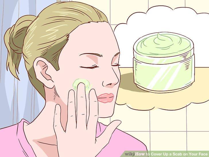 Tragen Sie eine Hydrocortison-Creme auf, um Juckreiz zu reduzieren.