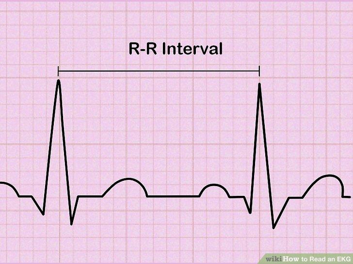 Bewerten Sie Ihren Herzrhythmus.