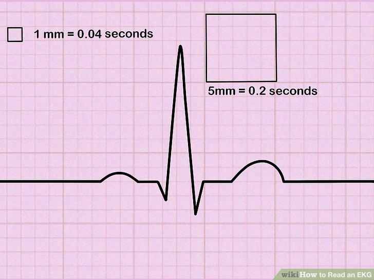 Machen Sie sich mit den Rastern eines EKG-Papierausdrucks vertraut.