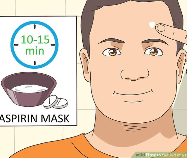 Image Titled Get Rid Of A Pimple Step