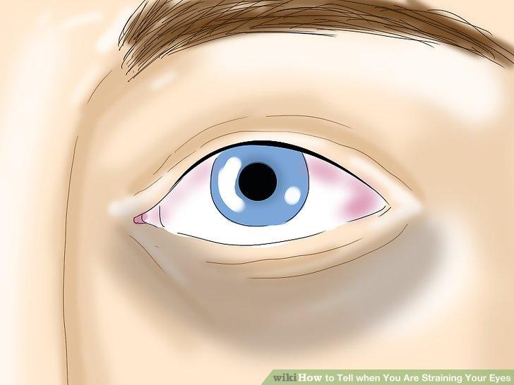 Überprüfen Sie Für Wunde, Müde, Brennende Oder Juckende Augen.