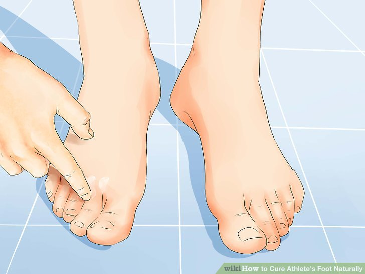Apply the treatment to your clean feet.