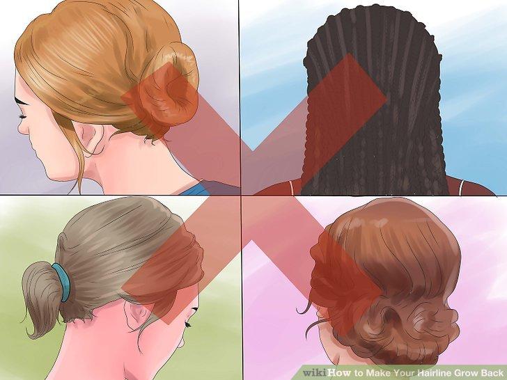 Vermeiden Sie Frisuren, die Ihr Haar belasten.