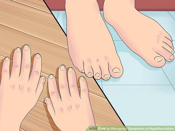 Achten Sie auf geschwollene Hände und Füße.