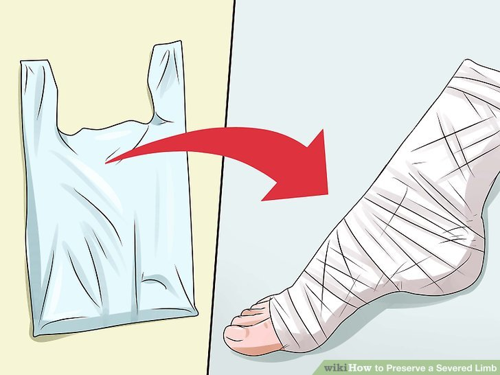 Gently wash the severed limb with sterile water or saline solution.