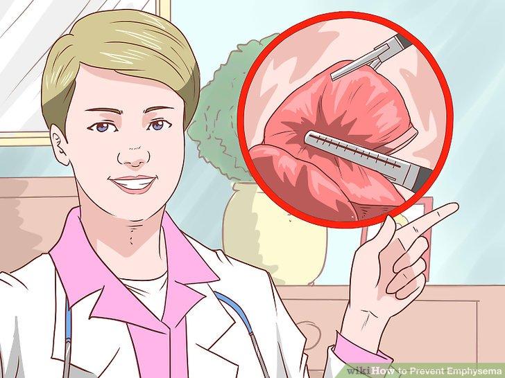 Fragen Sie Ihren Arzt über die Lungenvolumenreduktion.