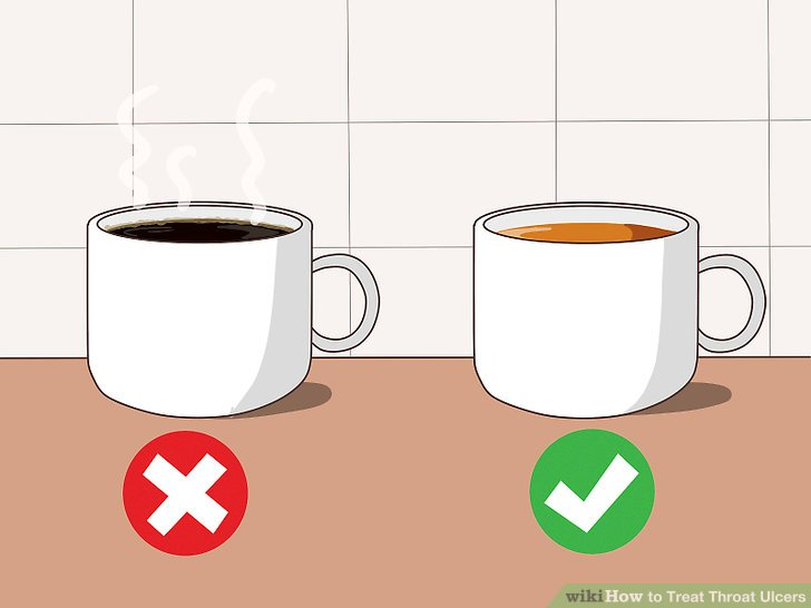 Avoid drinking hot beverages.