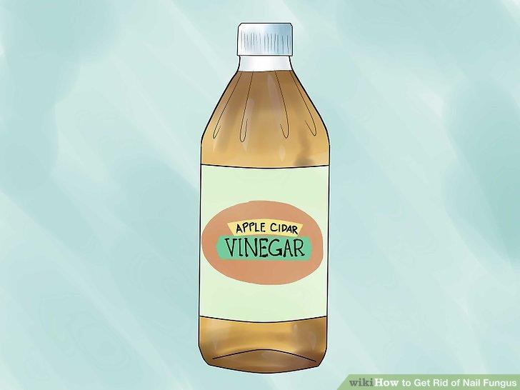 Verwenden Sie Apfelessig für seine bakterienbekämpfenden, sauren Eigenschaften.