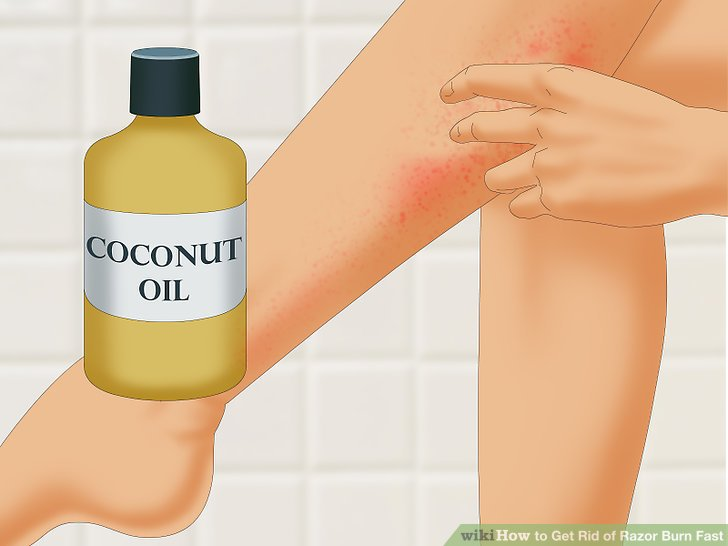 Use coconut oil to soothe your razor burn.