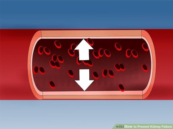 Verstehen Sie, wie hoher Blutdruck Ihre Nieren beeinflussen kann.