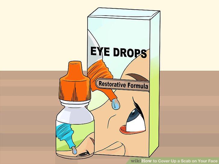 Tragen Sie Augentropfen auf, um die Rötung zu reduzieren.