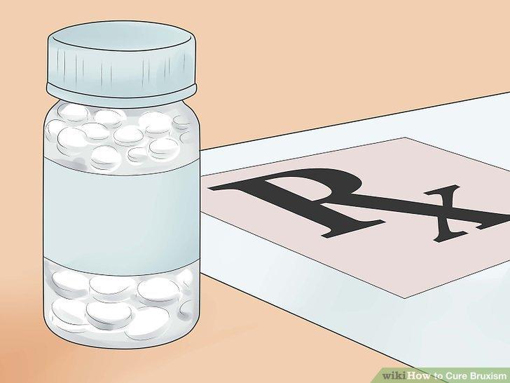 Fragen Sie Ihren Arzt nach nichtsteroidalen Antiphlogistika (NSAIDs).