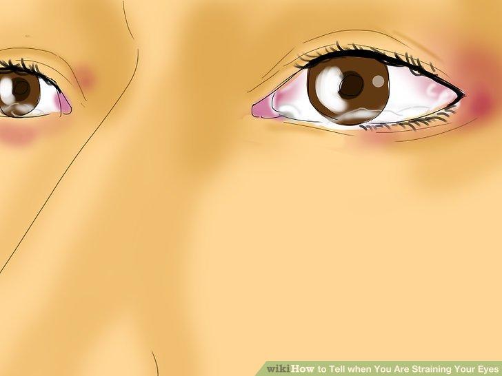 Beachten Sie, Wenn Ihre Augen Sind Wässrig.