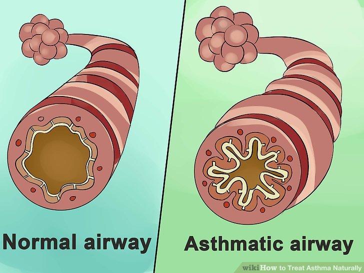 Verstehen, was Asthma ist.
