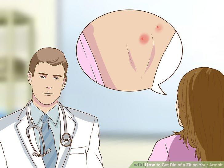 Fragen Sie Ihren Arzt nach den Pickeln.