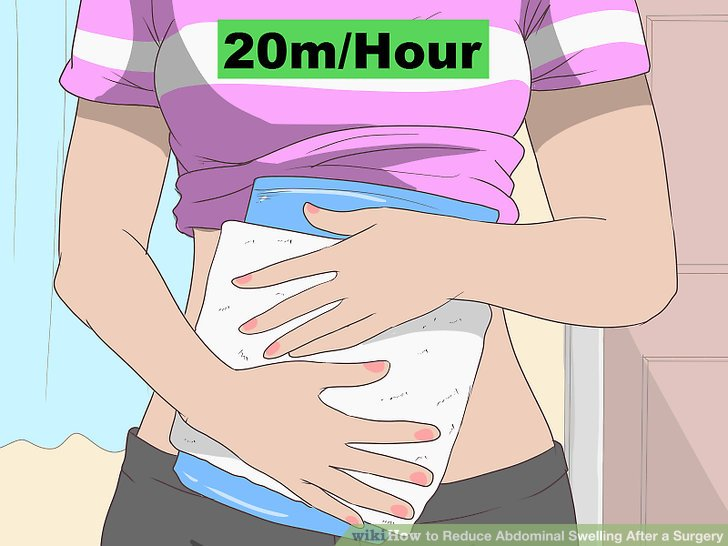 How to Reduce Abdominal Swelling After a Surgery 12 Steps
