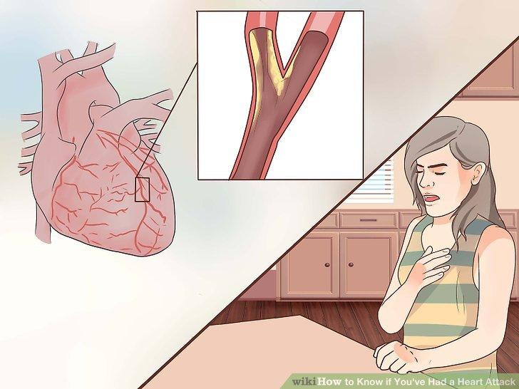 Beurteilen Sie, ob der Schmerz mit Angina zusammenhängt - wenn die Person, die möglicherweise einen Herzinfarkt hat, eine Vorgeschichte dieses Zustands aufweist.
