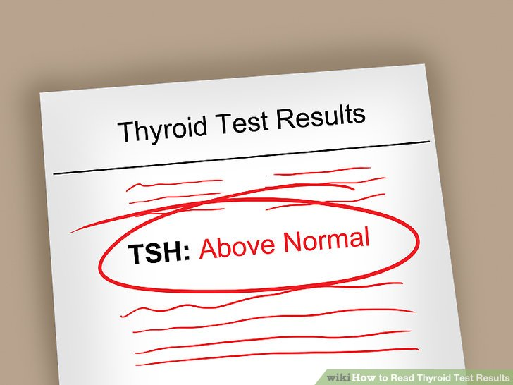 Check to see if your TSH reading is in the normal range.