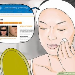 Acne Face Diagram Columbus Ship 3 Ways To Treat Whiteheads Wikihow Image Titled Step 6