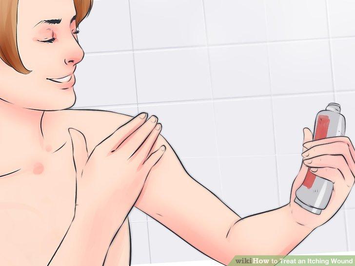Verwenden Sie eine 1% ige Hydrocortison-Creme.