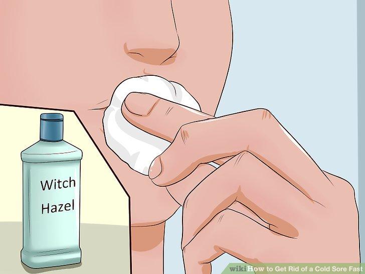 Apply witch hazel.