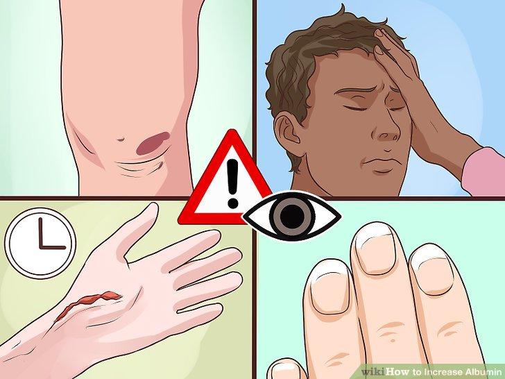 Anzeichen von niedrigem Albumin erkennen.