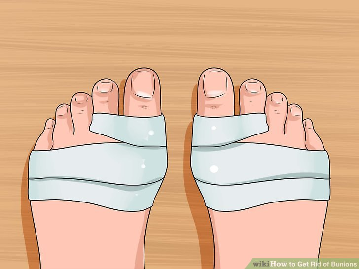 Tape your foot and toes into a normal alignment position.