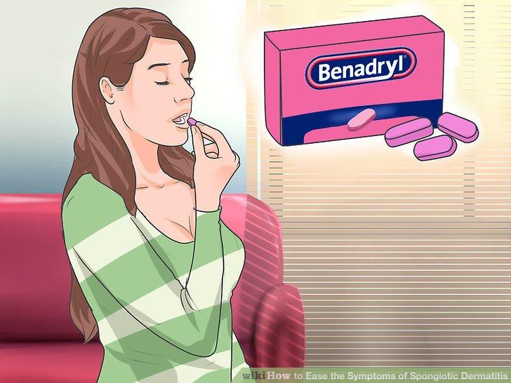Nehmen Sie rezeptfreie Antihistaminika ein, um Entzündungen und Juckreiz zu reduzieren.
