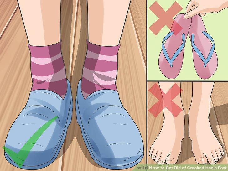 Vermeiden Sie bestimmte Schuharten, um Fußschmerzen und Problemen vorzubeugen.