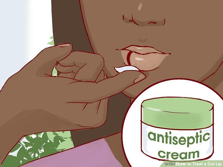 Erwägen Sie die Anwendung eines topischen Antiseptikums oder einer natürlichen Alternative.