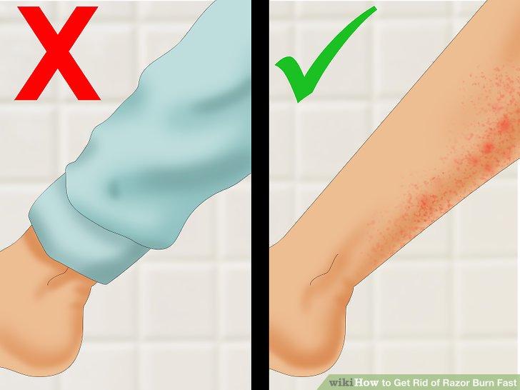 Try not cover the razor-burned skin.