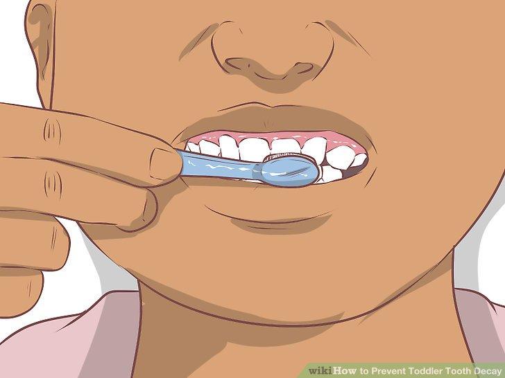 Putzen Sie die Zähne Ihres Kindes zweimal täglich.