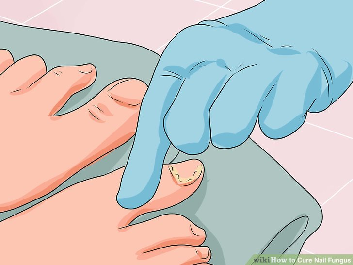How To? - How to Cure Nail Fungus