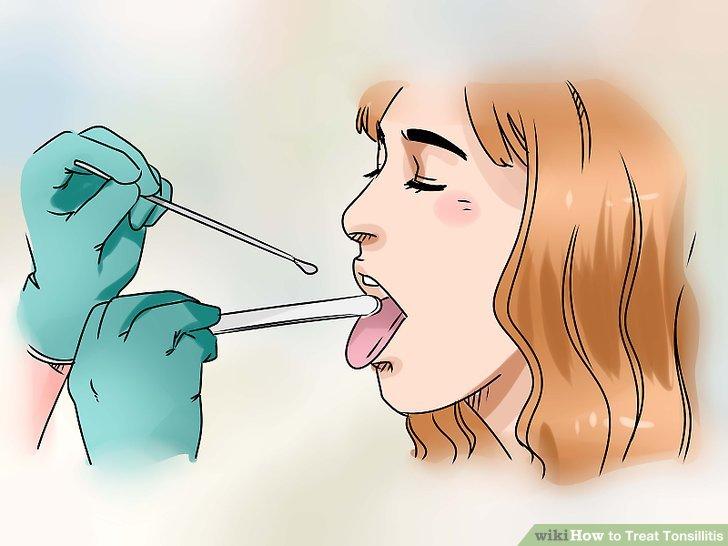 Bestätigen Sie Ihre Diagnose mit einem Halsabstrich und Kultur.