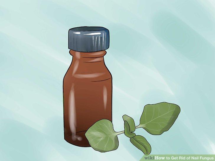 Versuchen Sie, Oreganoöl wegen seiner antimykotischen Eigenschaften zu verwenden.