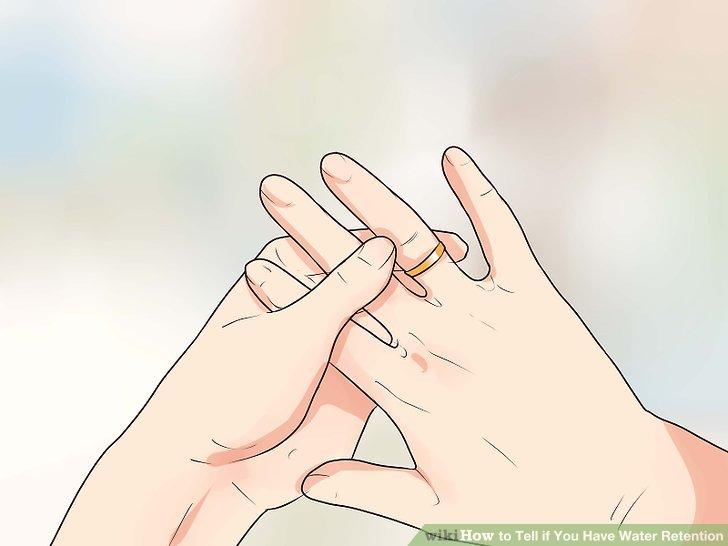 Überlegen Sie, ob Ihre Ringe enger sitzen als früher.