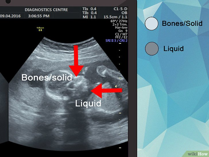 نتيجة بحث الصور عن ترجمة ورقة السونار للحامل