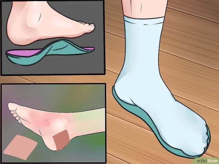 Immagine titolata Prevent Foot Blisters Step 13