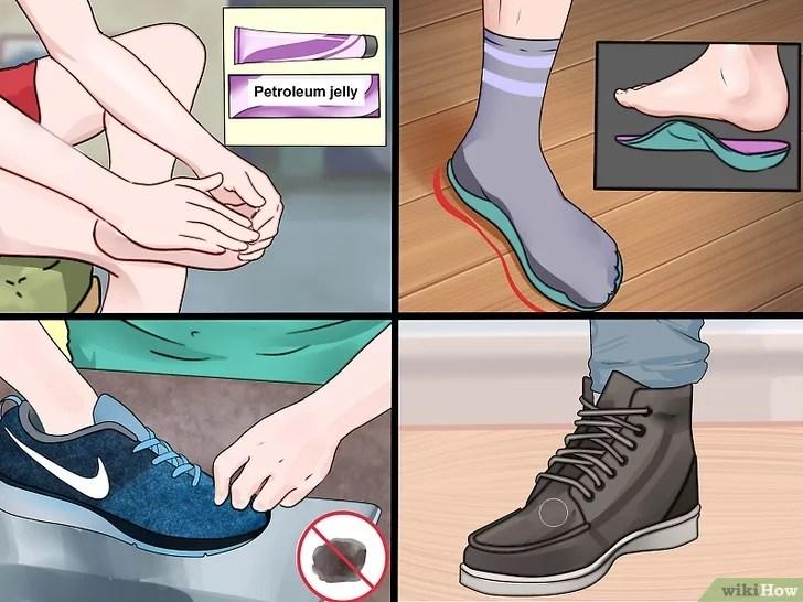 Immagine titolata Prevent Foot Blisters Step 12