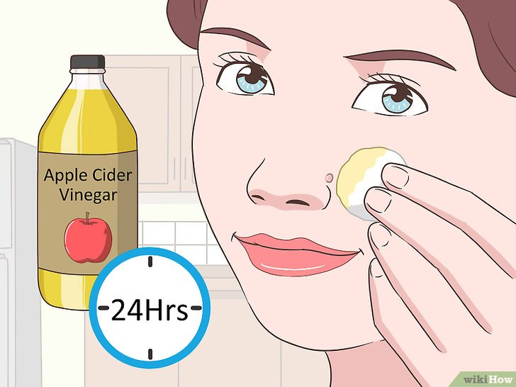 Gambar Berjudul Remove Facial Warts Step