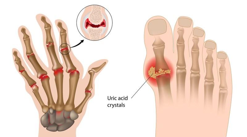 Apa Saja Gejala Rheumatoid Arthritis RA